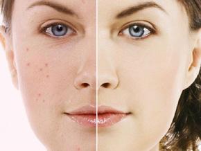 jerawat, acne, flek hitam, bekas jerawat, obat alami jerawat, obat herbal jerawat, kulit kencang, kulit putih bersih