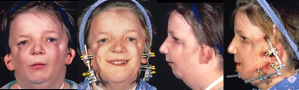 joubert syndrome with orofaciodigital defects Orofaciodigital syndrome type 6 is one of the 13 types of orofaciodigital syndrome orofaciodigital syndromes refers to conditions in which the oral cavity (mouth, tongue, teeth, and jaw), facial structures (head, eyes, and nose), and digits (fingers and toes) may be formed differently.