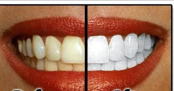 How to DIY Natural Teeth Whitening in Minutes at Your Home