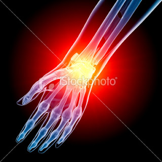 Arthritis , what is Arthritis