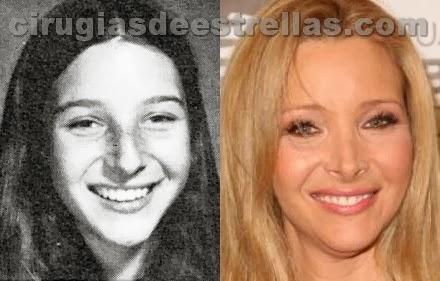 Lisa Kudrow antes y después