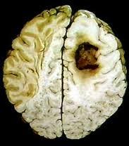 gambar sruktur otak