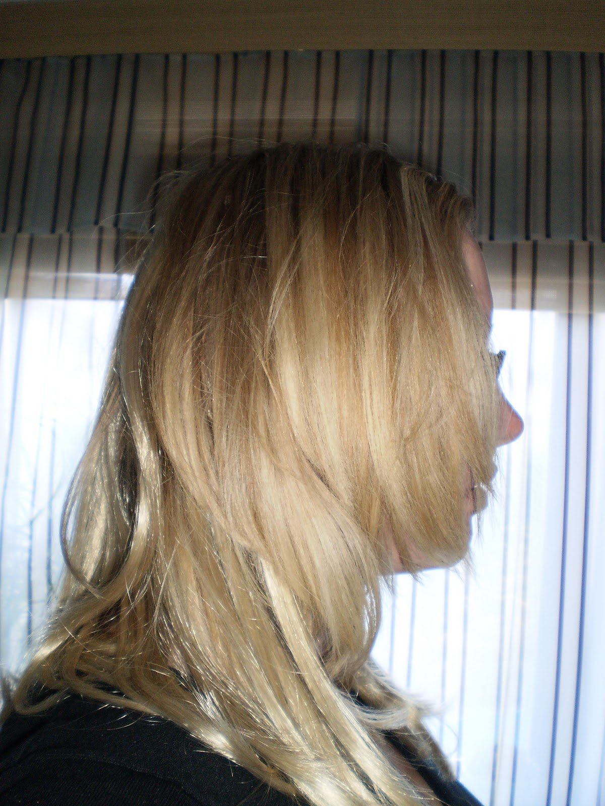 Haarverlangerung juckende kopfhaut