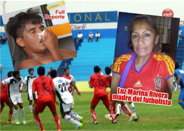 Huacho: Madre de futbolista que se fracturó el pómulo en partido hace llamado de ayuda