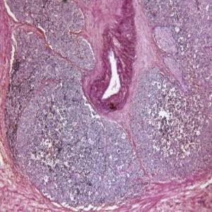 Vasectomia pode aumentar o risco de câncer de prostata