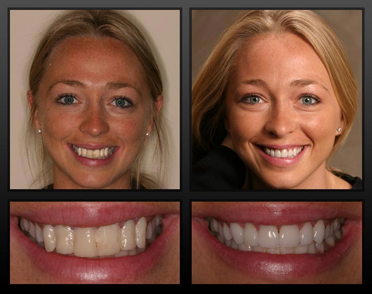 What to look for when going with veneers Veneers
