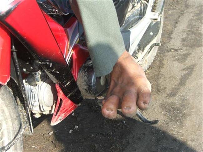 Lelaki punya jari kaki gergasi