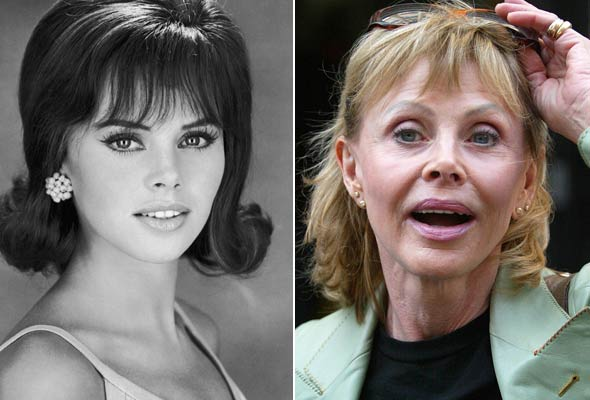 Chatter Busy: Britt Ekland Plastic Surgery