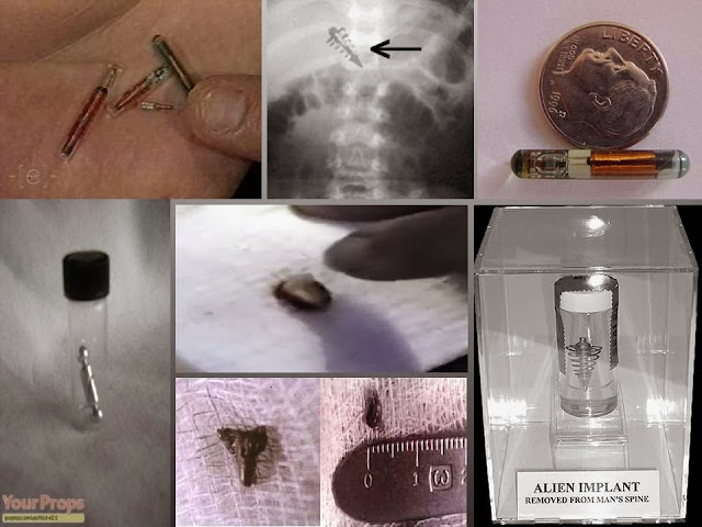 The Reality Of Alien Implants In The Human Body