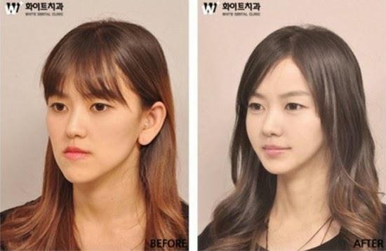 Cirurgias plásticas na Coreia do Sul