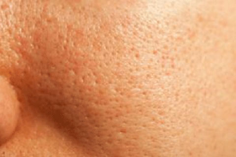 Cách làm se khít lỗ chân lông sau triệt lông vĩnh viễn