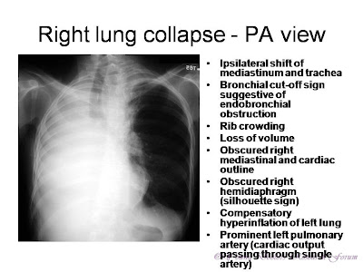 Ipsilateral shift of mediastinum and trachea Bronchial cut-off sign suggestive of endobronchial obstruction Rib crowding Loss of volume Obscured right mediastinal and cardiac outline Obscured right hemidiaphragm (silhouette sign) Compensatory hyperinflation of left lung Prominent left pulmonary artery (cardiac output passing through single artery)