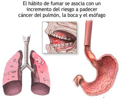 La sensación si a dejar fumar