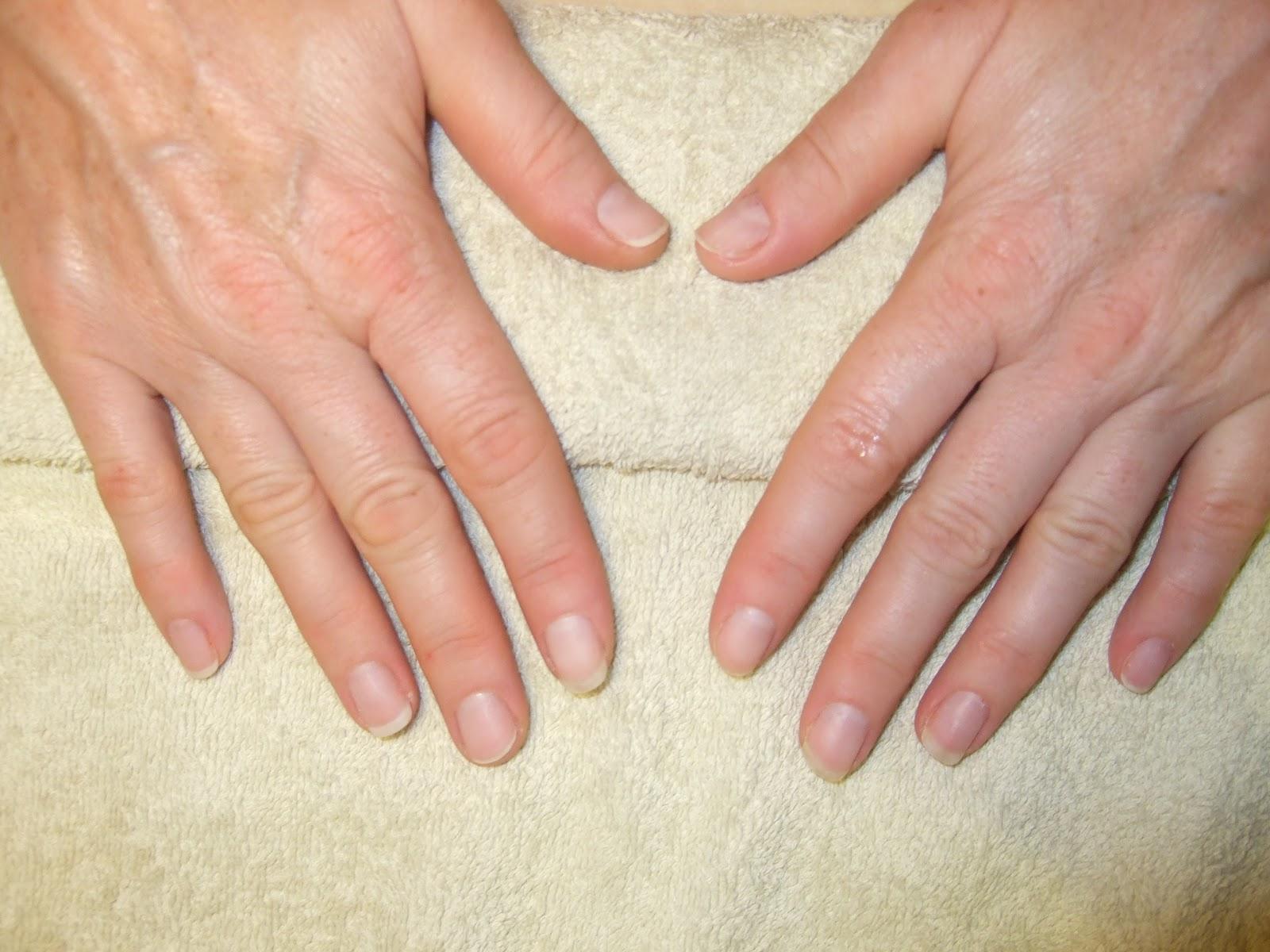 Дизайн ногтей до и после фото