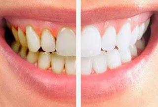 Dengan Tempo 3 Menit Gigi Kuning Kamu Bisa Hilang