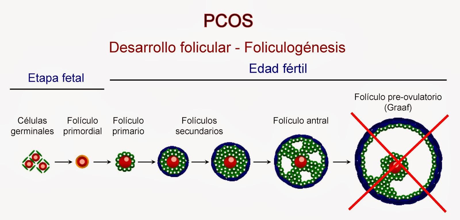 Foliculogénesis alterada en el síndrome del ovario poliquístico