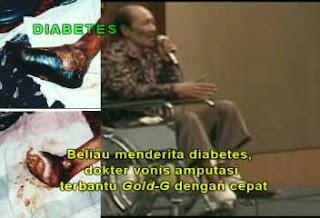Jelly Gamat sembuhkan luka diabetes