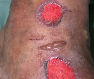 Bullosis diabeticorum