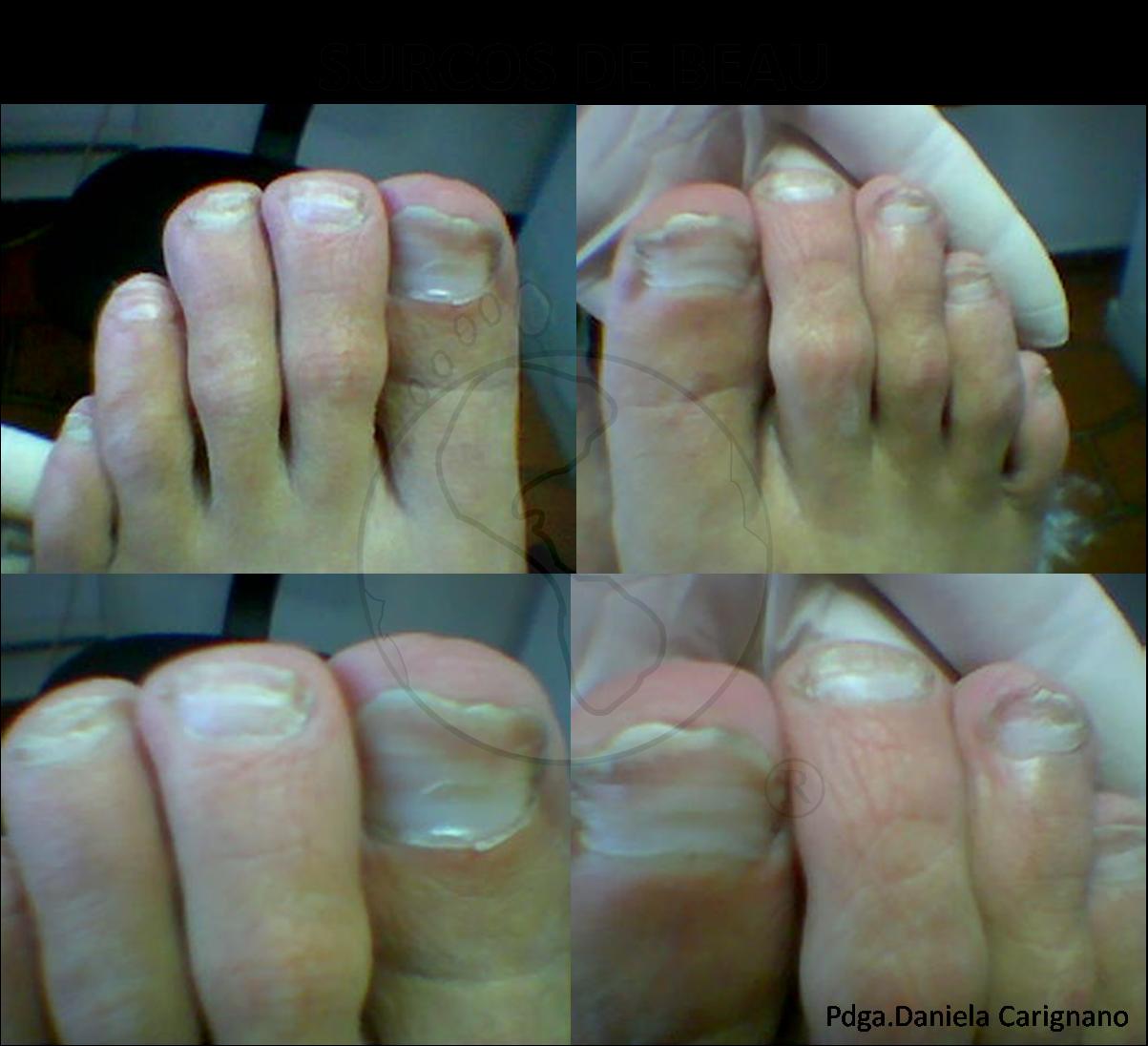 Como arreglar el hongo de las uñas de las manos