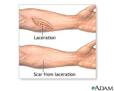 organ is damaged, scar tissue replaces the normal tissues. These scar ...