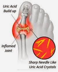 Sakit Gout : Punca, Rawatan & Pencegahan