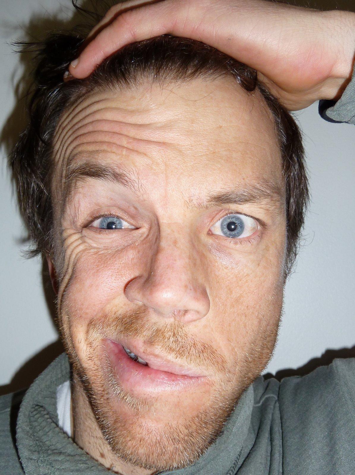 Facial palsy symptoms