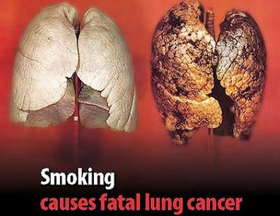 Tác hại của thuốc lá như thế nào ?