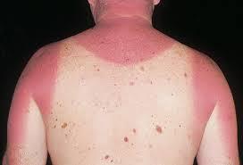 perawatan kulit natural alami