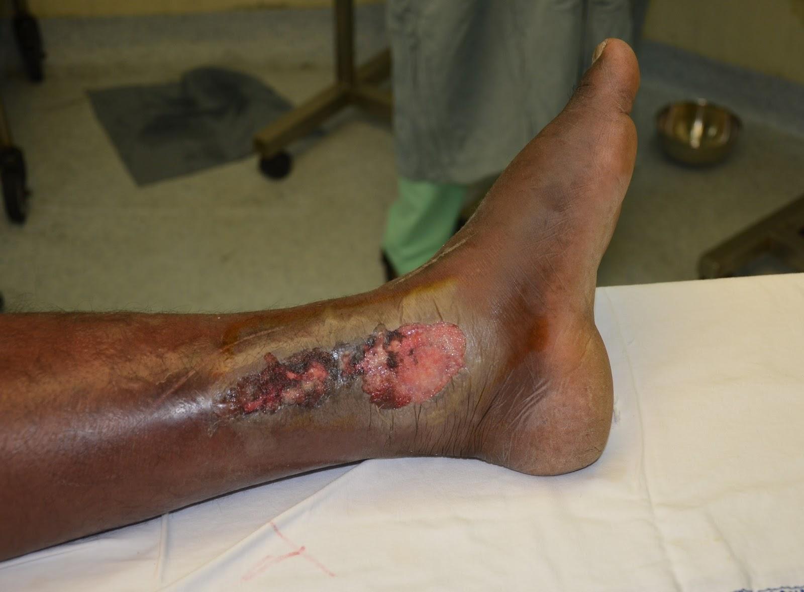 CELLULITIS OVER SILENCER BURN LEFT LEG - NEGATIVE PRESSURE WOUND ...