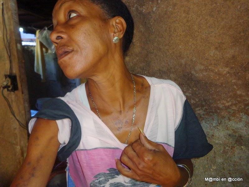 Atopichesky la dermatitis al niño los síntomas