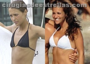 Aumento de senos de Paula Echevarria