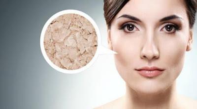 Cara mengatasi kulit kering alami