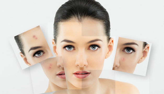 Tips Cantik Untuk Wajah Berminyak