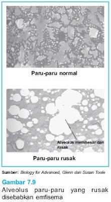 alveolus paru paru rusak, Emfisema
