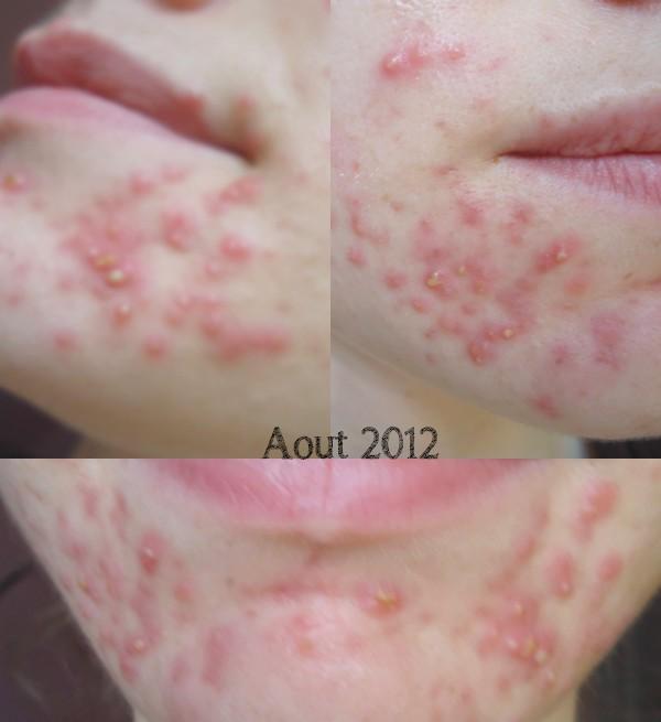 My beauty moment: L'acné : mon parcours - un an de bataille