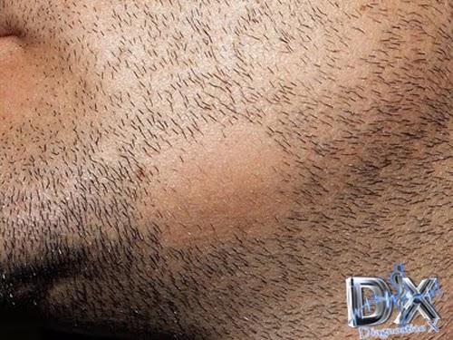 La alopecia a las mujeres de la causa el tratamiento el foro