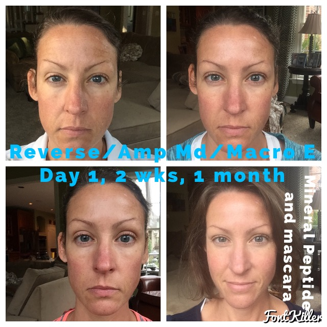 my own rodan fields before afters