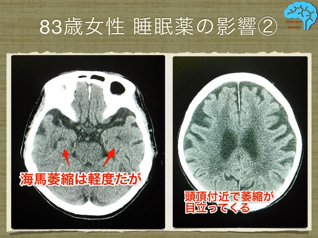 睡眠薬の影響で認知面が低下。しかし脳萎縮も伴っている。