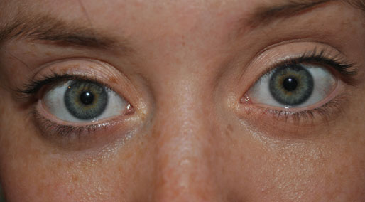 get rid of dark circles, makeup tips