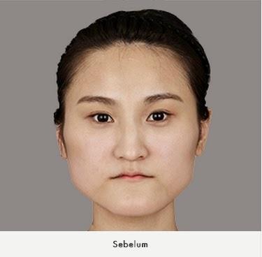 sebelum koreksi tulang wajah di bedah plastik wonjin