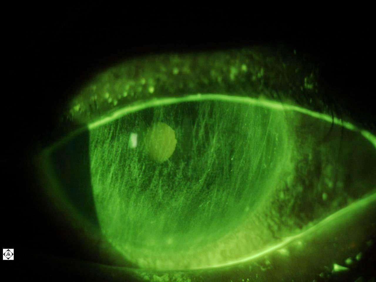fluorescein stain