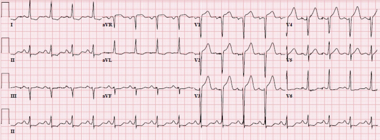 Ont Elevation Images : Dr smith s ecg lvh with anterior st elevation when
