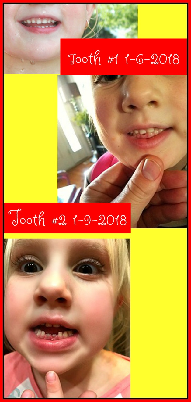 Preslie looses 1st and 2nd Tooth