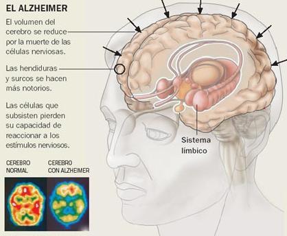 Confirman el vínculo entre Mal de Alzheimer y deficiencia de vitamina D