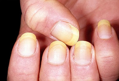 how to clean yellow nails with hydrogen peroxide