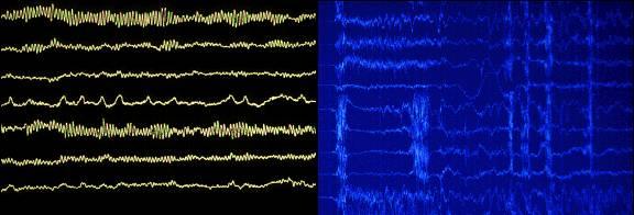 Electroencefalograma (EEG) de un ataque epiléptico