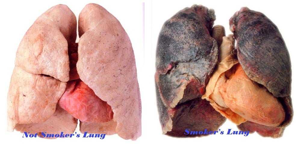 comparison lungs of a smoker healthy heart