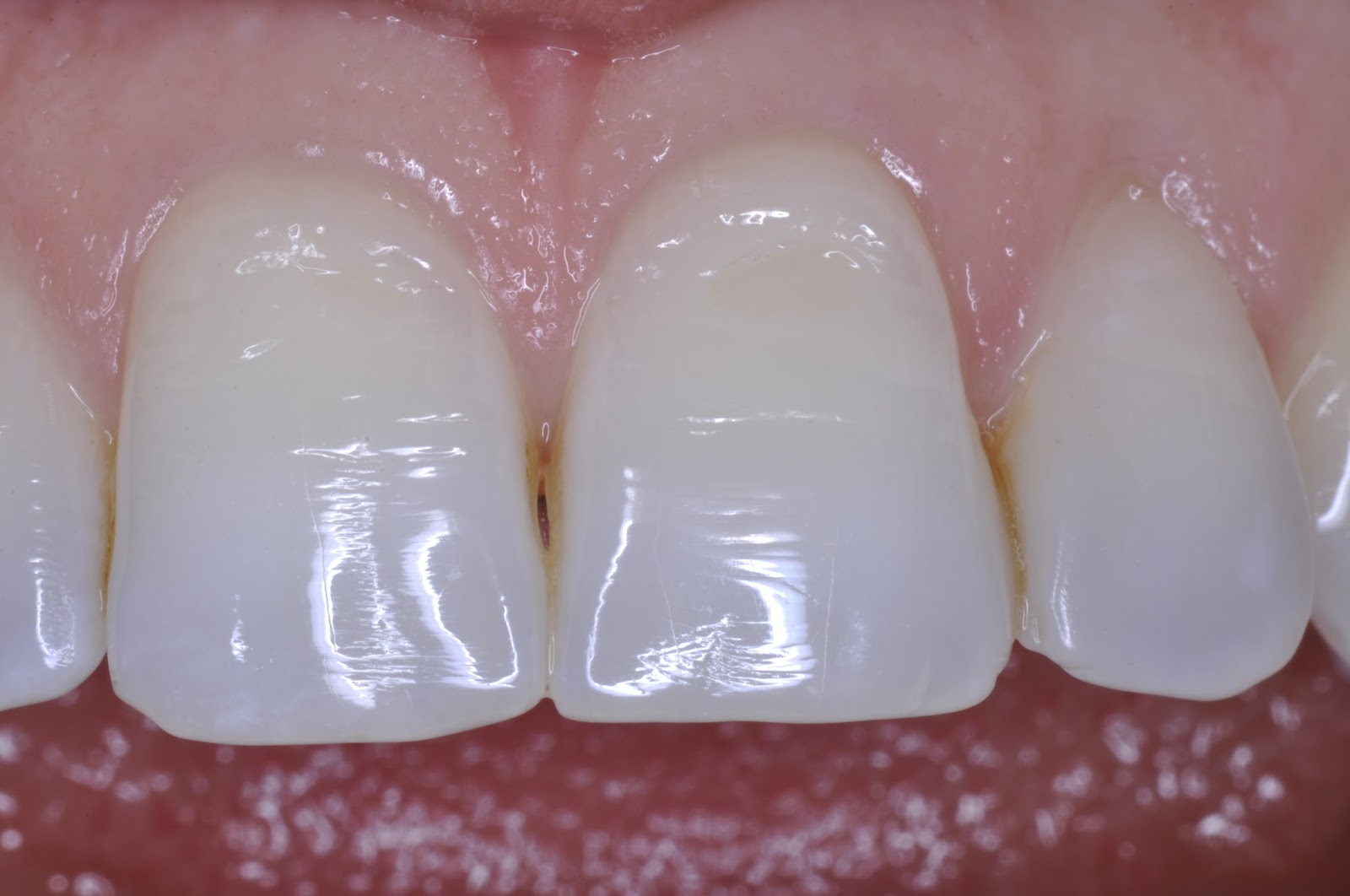 A hole in a tooth is a serious nuisance 39