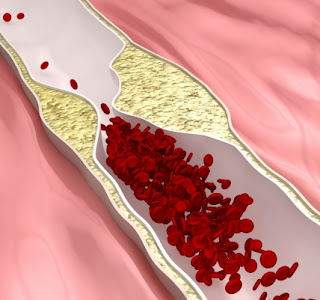 Image of an atherosclerosis illustration, or clogged arteries, which is a major risk factor for heart attacks.