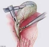 √~ جراحة البطن التنظيرية العلاجية